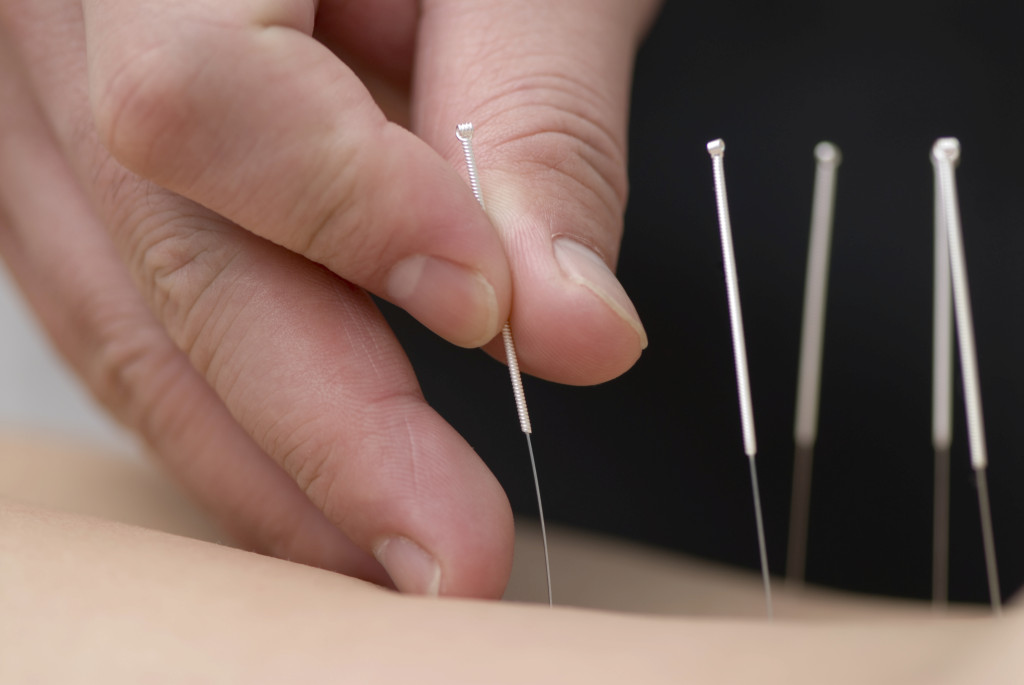 Needles used for acupuncture for pain relief.