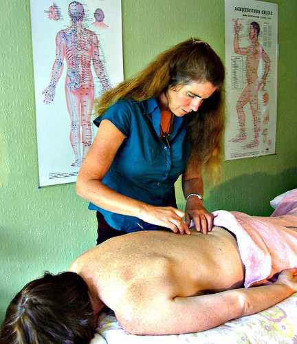 acupuncture back pain relief